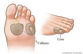 Callus and Corns
